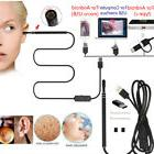 USB Digital LED Otoscope Ear HD Mini Camera Scope Earwax Rem